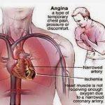 5 Tips mengurangi resiko penyakit jantung koroner