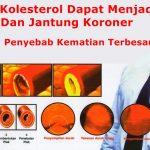 Kenali Gejala Kolesterol dan Cara Menurunkannya Secara Alami
