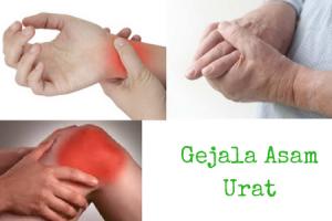 tanda dan gejala asam urat