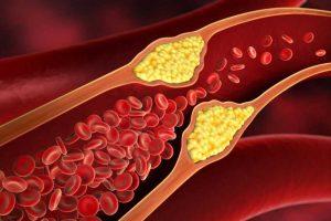 cara mencegah kolesterol