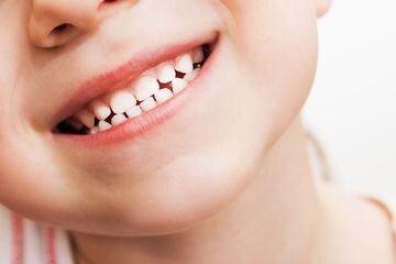 Jangan Salah, Begini Cara Merawat Gigi Berlubang Pada Anak
