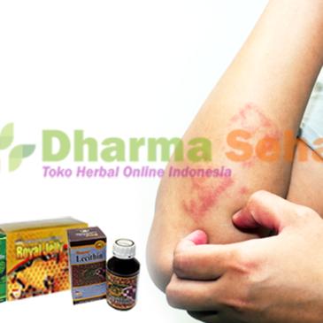 Obati Herpes Dengan Paket Herbal Dari Nasa