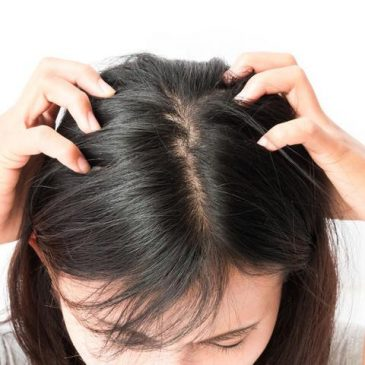 5 Jenis Bahan Alami Ini Terbukti Hempaskan Kutu Rambut Anda